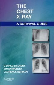 The Chest X-Ray A Survival Guide